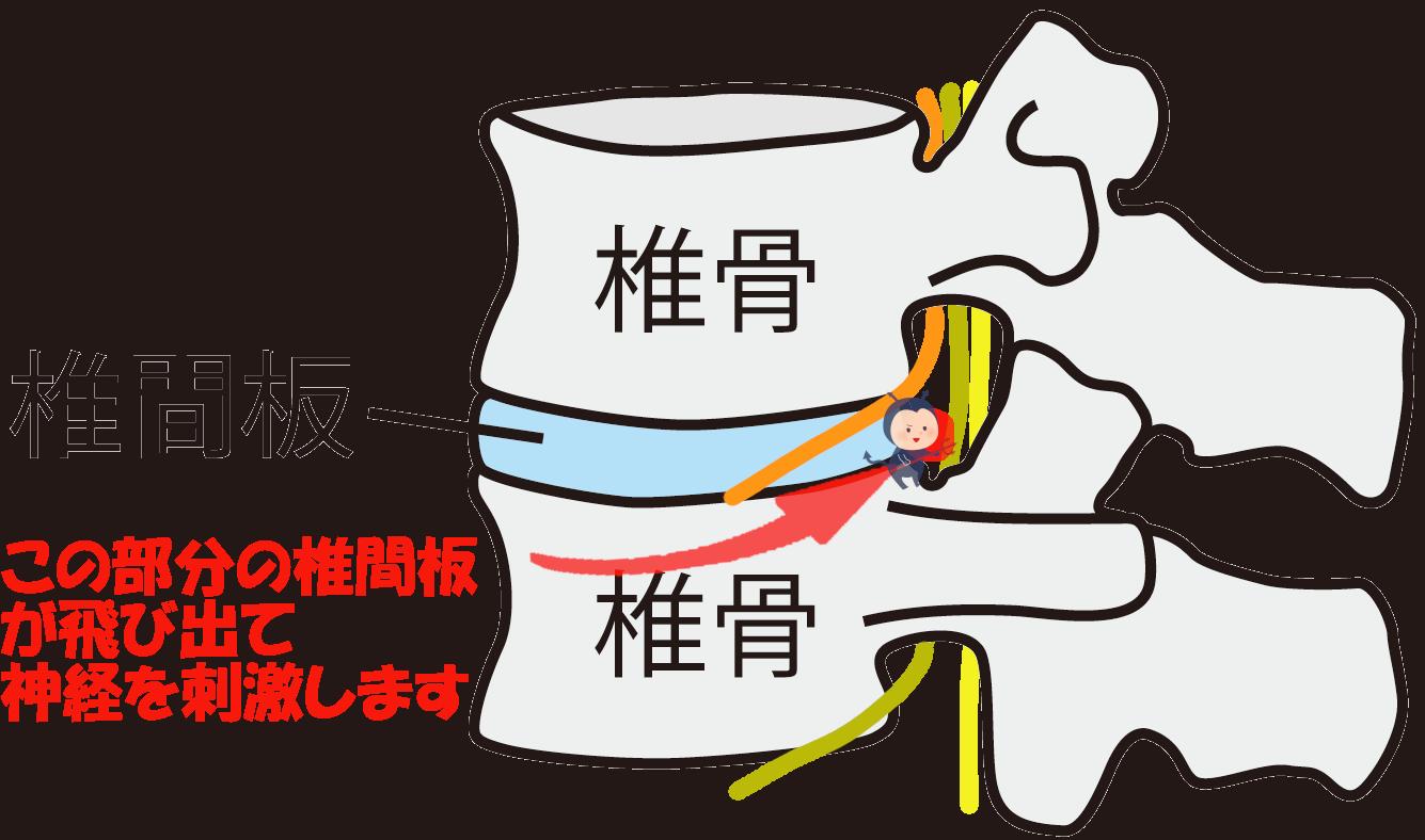 腰椎椎間板神経ヘルニア