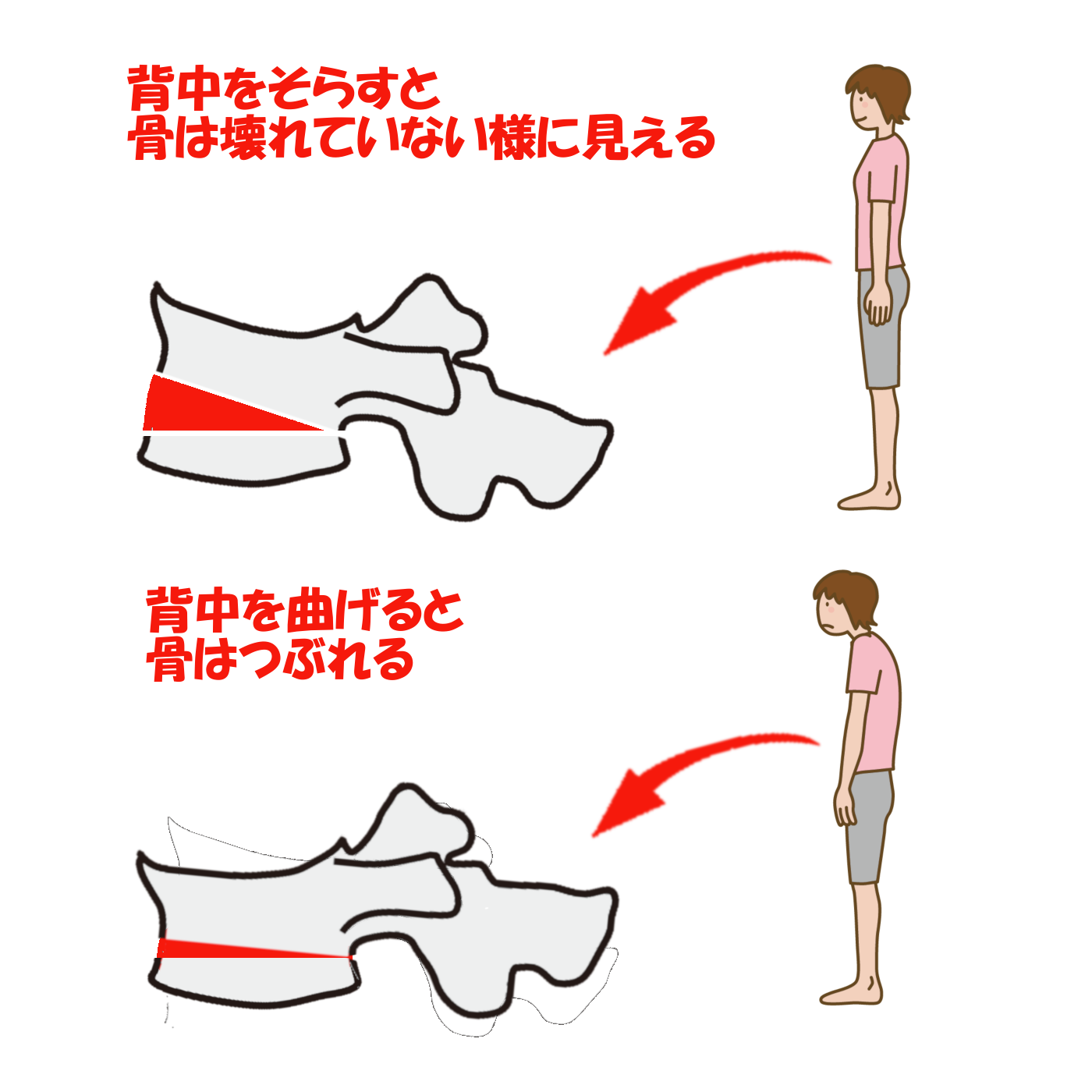 三 骨折 圧迫 第 腰椎