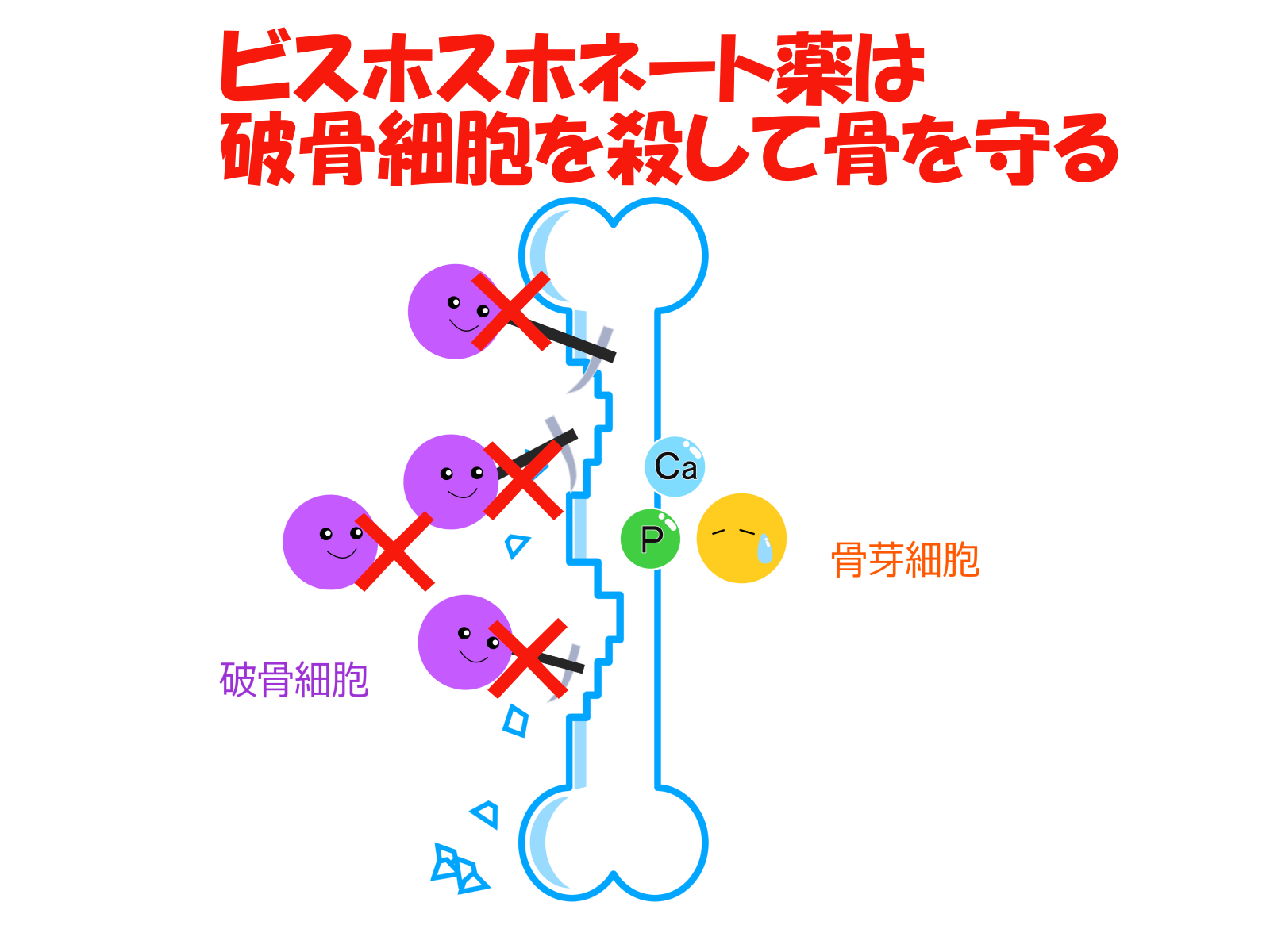 骨粗鬆症ビスホスホネート薬