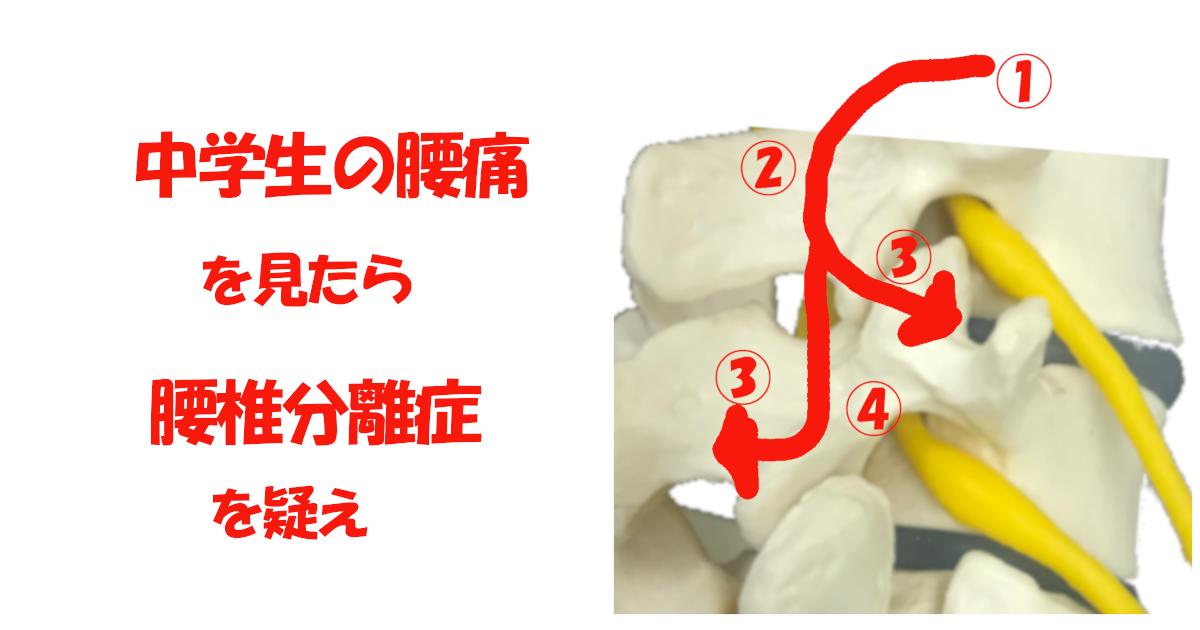 腰椎分離症 中学生 腰痛