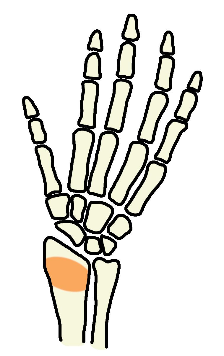 橈骨骨挫傷