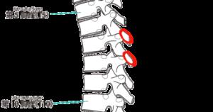 胸椎棘突起骨折