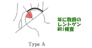 特発性大腿骨頭壊死症 治療 typea
