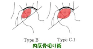 特発性大腿骨頭壊死症 治療 typeb